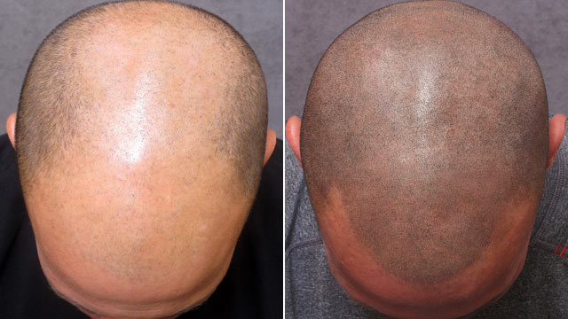 tetovanie vlasov - permanentmakeupstudio.sk