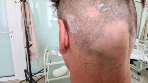 vlasy pred